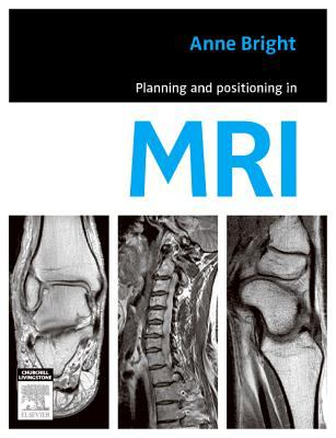 Planning and Positioning in MRI 9780729539852