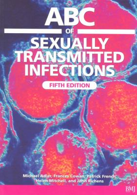 ABC of Sexually Transmitted Infections 9780727917614
