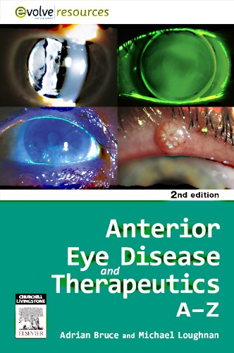 Anterior Eye Disease and Therapeutics A-Z 9780729539579