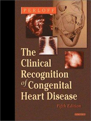 Clinical Recognition of Congenital Heart Disease 9780721697307