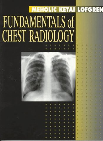 Fundamentals of Chest Radiology 9780721654003