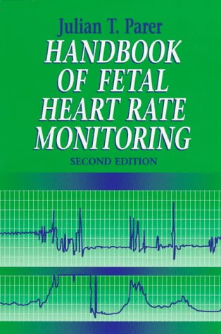fetal heart monitoring essay Fetal electronic monitoring essay heart do you underline essay titles in mla view elijah: november 1, 2017 the key to writing a great research paper is doing it on.