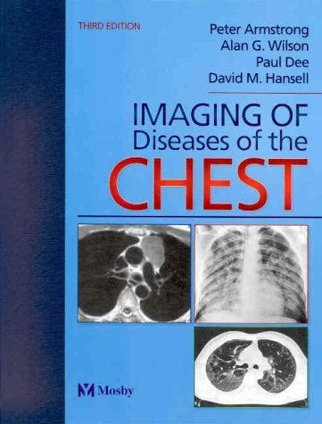 Imaging of Diseases of the Chest 9780723431664