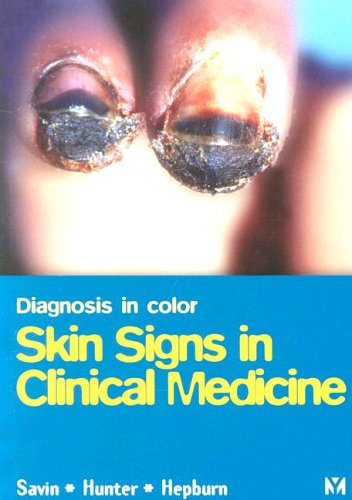 Skin Signs in Clinical Medicine 9780723422402