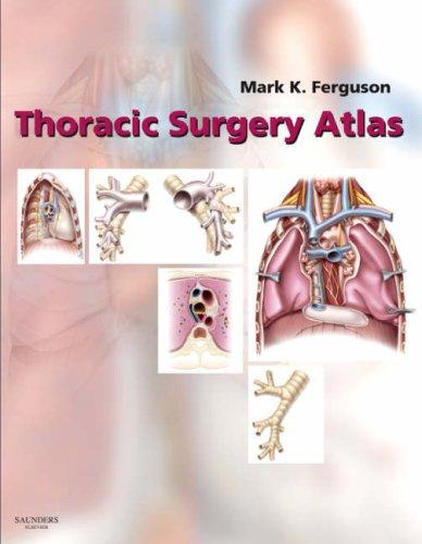Thoracic Surgery Atlas 9780721603254