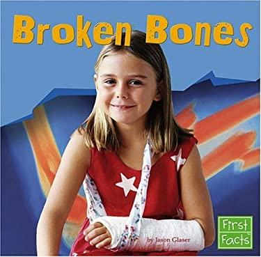 Broken Bones 9780736863308