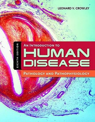 An Introduction to Human Disease: Pathology and Pathophysiology Correlations 9780763765910