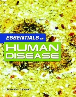 Essentials of Human Disease 9780763765903