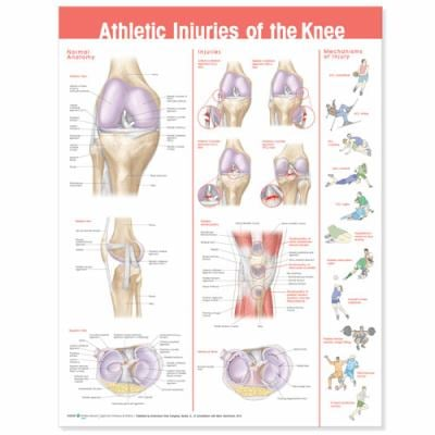 Athletic Injuries of the Knee Anatomical Chart 9780781786720