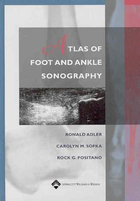 Atlas of Foot and Ankle Sonography 9780781747691