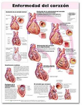 Heart Disease Anatomical Chart in Spanish (Enfermedad del Corazon) 9780781782197
