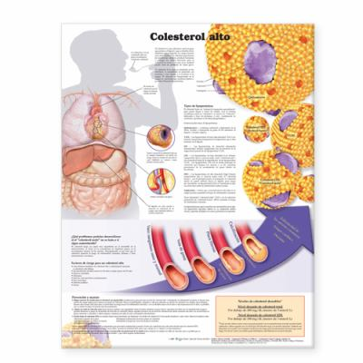 High Cholesterol Anatomical Chart in Spanish (Colesterol Alto) 9780781773041