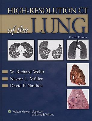 High-Resolution CT of the Lung [With Online Access Code] 9780781769099