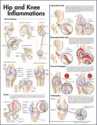 Hip and Knee Inflammations Anatomical Chart 9780781773454
