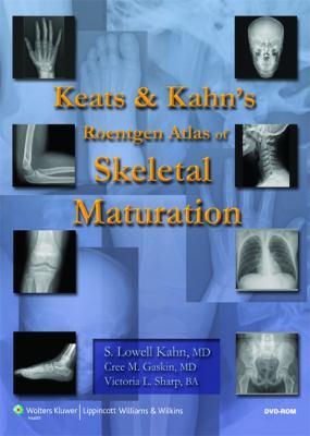 Keats and Kahn's Roentgen Atlas of Skeletal Maturation