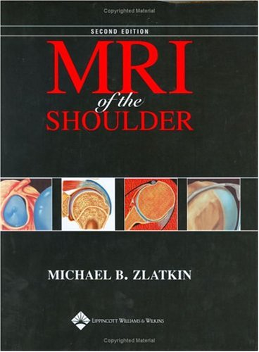 MRI of the Shoulder 9780781715904