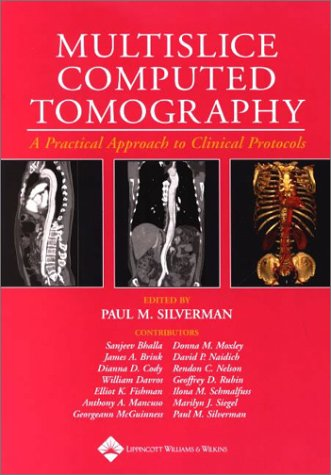 Multislice Computed Tomography: Principles, Practice, and Clinical Protocols 9780781733120