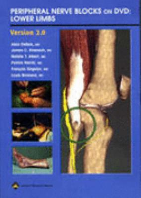Peripheral Nerve Blocks on DVD: Lower Limbs 9780781743396