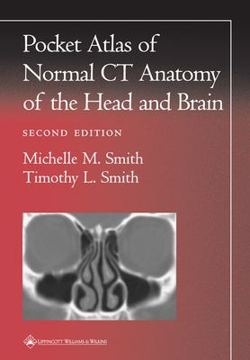 Pocket Atlas of Normal CT Anatomy of the Head and Brain 9780781729499