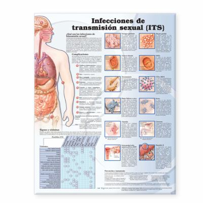 Sexually Transmitted Infections Anatomical Chart in Spanish (Infecciones de Transmision Sexual) 9780781773416