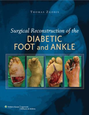 Surgical Reconstruction of the Diabetic Foot and Ankle 9780781784580