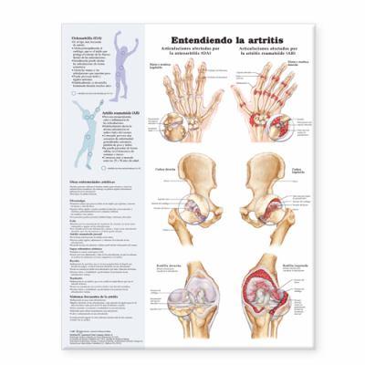 Understanding Arthritis Spanish: Entendiendo La Artritis 9780781773027