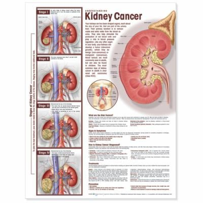 Understanding Kidney Cancer Anatomical Chart 9780781786515