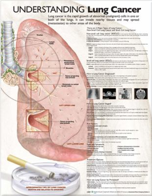 Understanding Lung Cancer 9780781773256