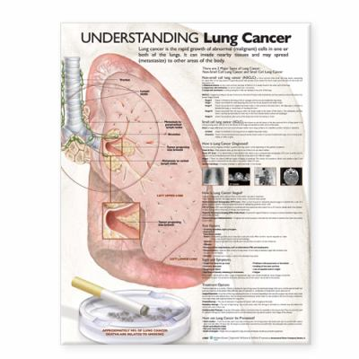 Understanding Lung Cancer Anatomical Chart 9780781773232