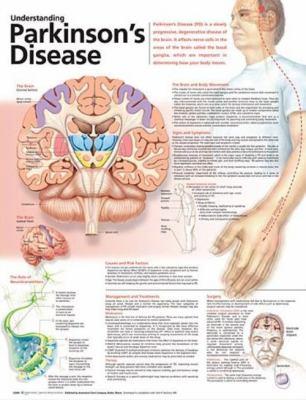 Understanding Parkinson's Disease Anatomical Chart 9780781786355