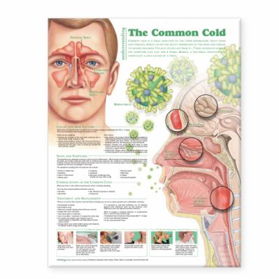 Understanding the Common Cold Anatomical Chart 9780781786317