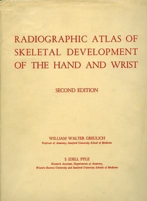 Radiographic Atlas of Skeletal Development of the Hand and Wrist 9780804703987