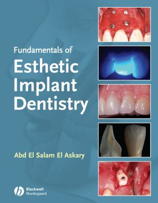 Fundamentals of Esthetic Implant Dentistry 9780813814483
