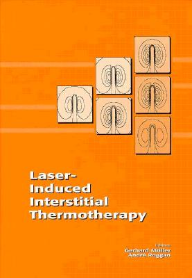 Laser-Induced Interstitial Thermotherapy 9780819418593