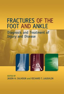 Fractures of the Foot and Ankle: Diagnosis and Treatment of Injury and Disease 9780824759162