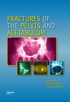 Fractures of the Pelvis and Acetabulum 9780824728465