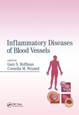 Inflammatory Diseases of Blood Vessels 9780824702694