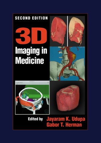 3D Imaging in Medicine, Second Edition 9780849331794