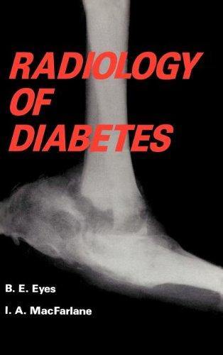Radiology of Diabetes 9780852009369