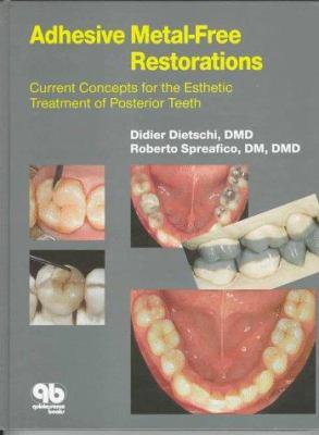 Adhesive Metal Free Restorations 9780867153286