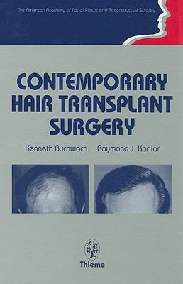 Contemporary Hair Transplant Surgery:
