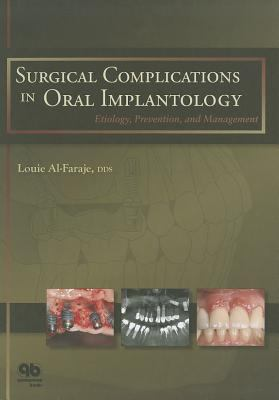 Surgical Complications in Oral Implantology: Etiology, Prevention, and Management 9780867155068
