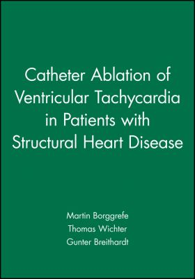 Catheter Ablation of Ventricular Tachycardia in Patients with Structural Heart Disease