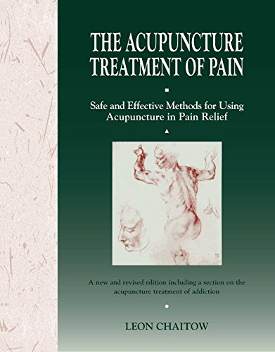 Acupuncture Treatment of Pain: Safe and Effective Methods for Using Acupuncture in Pain Relief 9780892813834