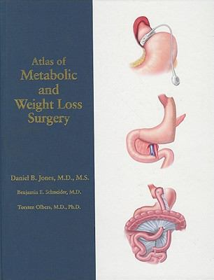 Atlas of Metabolic and Weight Loss Surgery 9780978889081