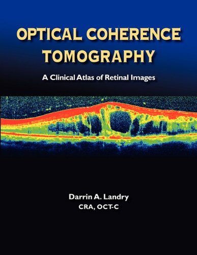 Optical Coherence Tomography a Clinical Atlas of Retinal Images 9780984193448