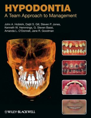 Hypodontia: A Team Approach to Management 9781405188593