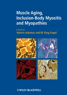 Muscle Aging, Inclusion-Body Myositis and Myopathies 9781405196468