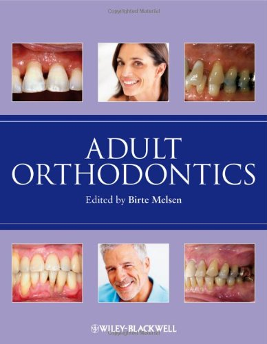 Adult Orthodontics 9781405136198