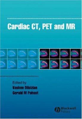 Cardiac CT, PET and MR 9781405124478